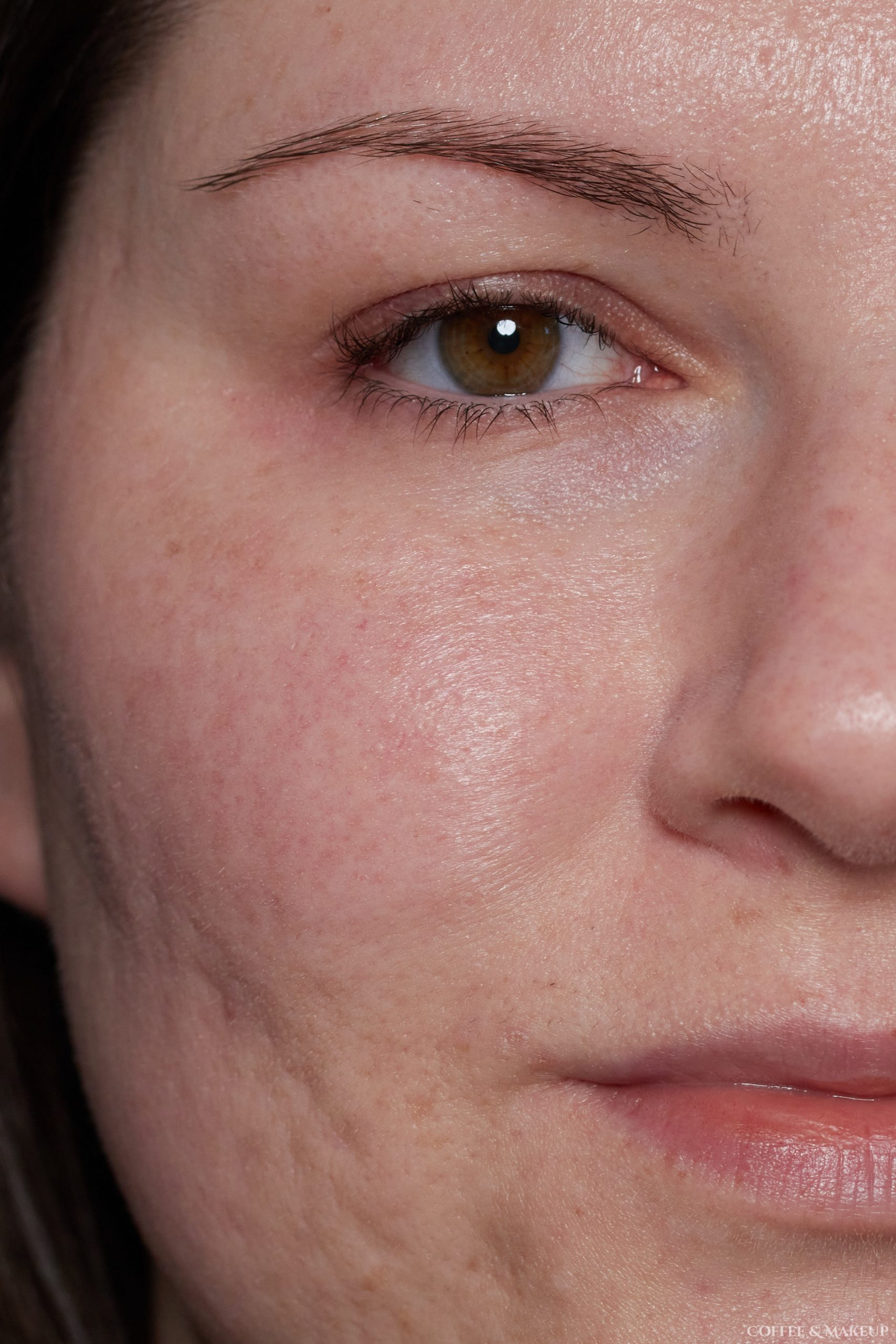 After | Ilia Super Serum Skin Tint SPF 40