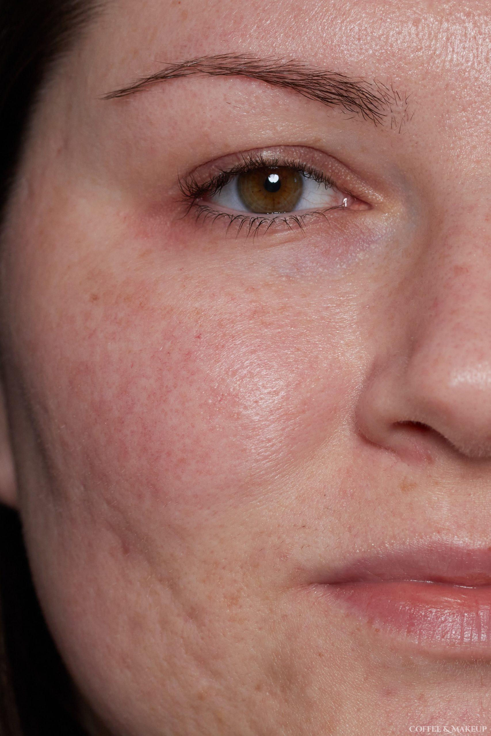 Before | Ilia Super Serum Skin Tint SPF 40